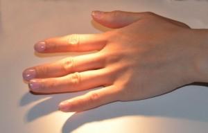 指の皮がむける
