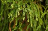 スギ花粉の症状の特徴